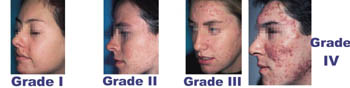Grade I, II, III acne can use Epiduo Gel.