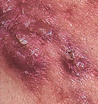 Mitos y Como curar el acné